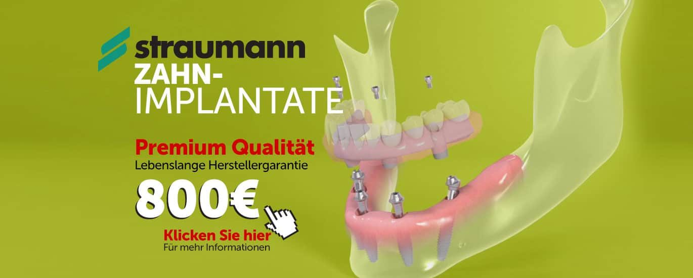 straumann-implantsdeutschA